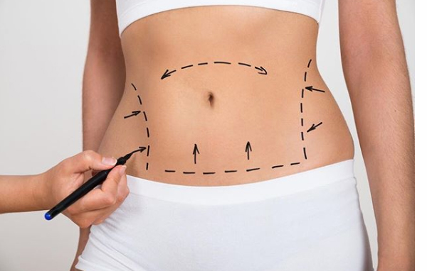 Best Tummy Tuck Boca Raton