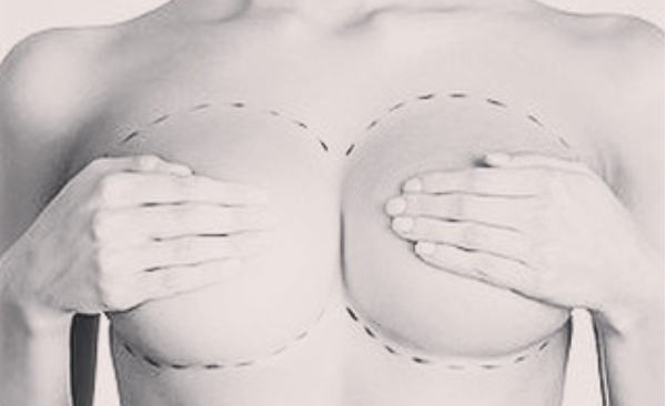 Breast Implants Boca Raton