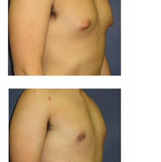 Male Breast Surgery Boca Raton
